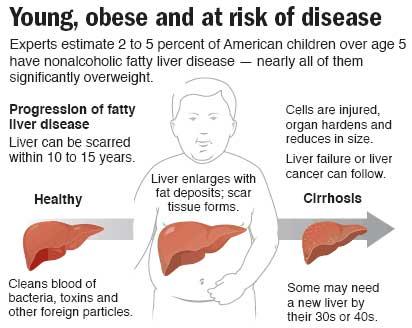 Resveratrol vs. Fatty Liver