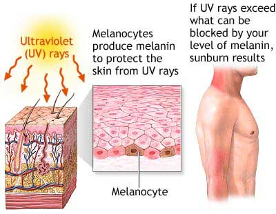 The Skin and Sunburn