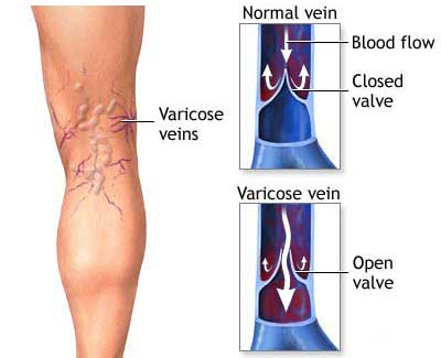 Natural Varicose Vein Care