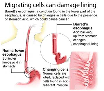 Symptoms Of Esophagus Problems |.