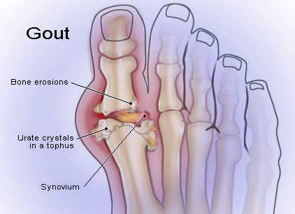 Natural Ways To Reduce Gout