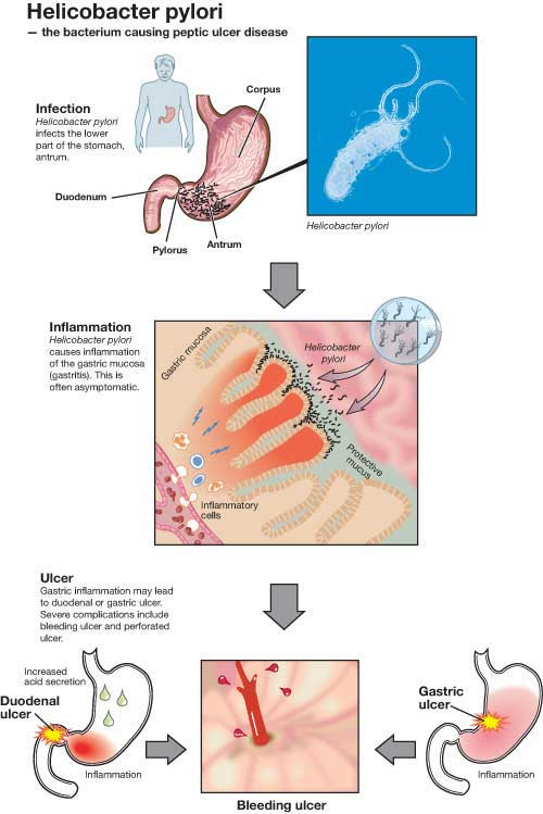 The Dangers of H. Pylori