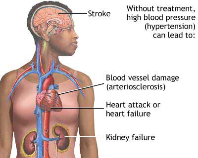 Blood Pressure and the Body